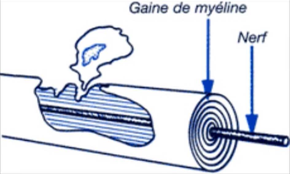 SEP Schlérose en plque myéline