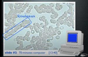 Sang du sujet exposé 70 mn devant son ordinateur